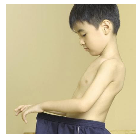 کدام رفتارهای جنسی بچهها هشداردهنده است؟ ( از کودکان نوپا تا نوجوانان)